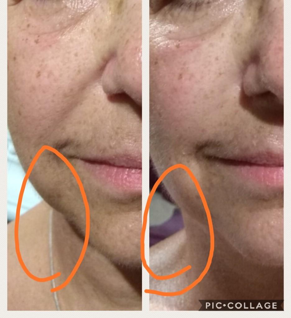 העלמת קמטים ומתיחה של העור