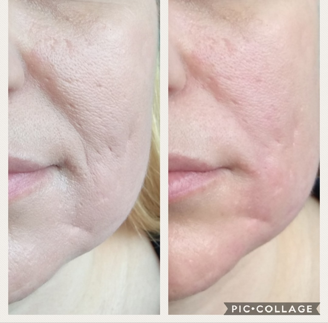 שיפור מיידי במרקם העור